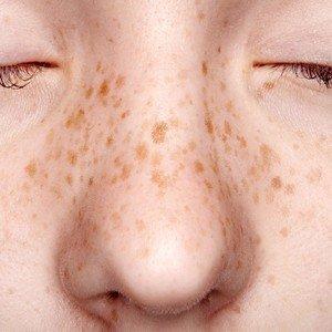 FreckleGirli